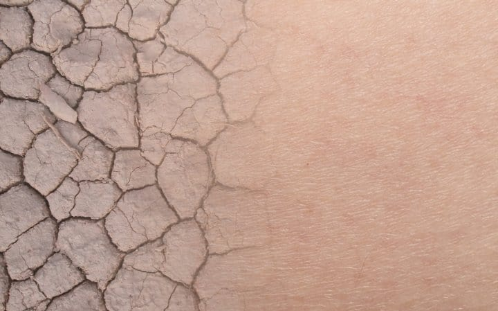 DIY HOME REMEDIES FOR BLISTERS