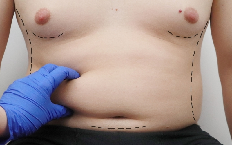 When most people consider a surgical procedure to remove fat from their midsection, they consider two surgical procedures: a tummy tuck or liposuction.